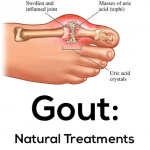 Natural Gout Relief with Nopalea Drink