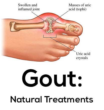 normal serum uric acid levels in males food good for gout sufferers